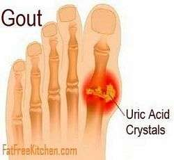 picture of gout in toe