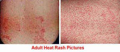 Adult Heat Rash Picture